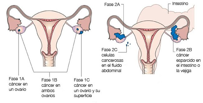 Hpv e cancer de ovario