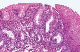 CANCER GASTRICO PROXIMAL (cardias y unión gastroesofágica)